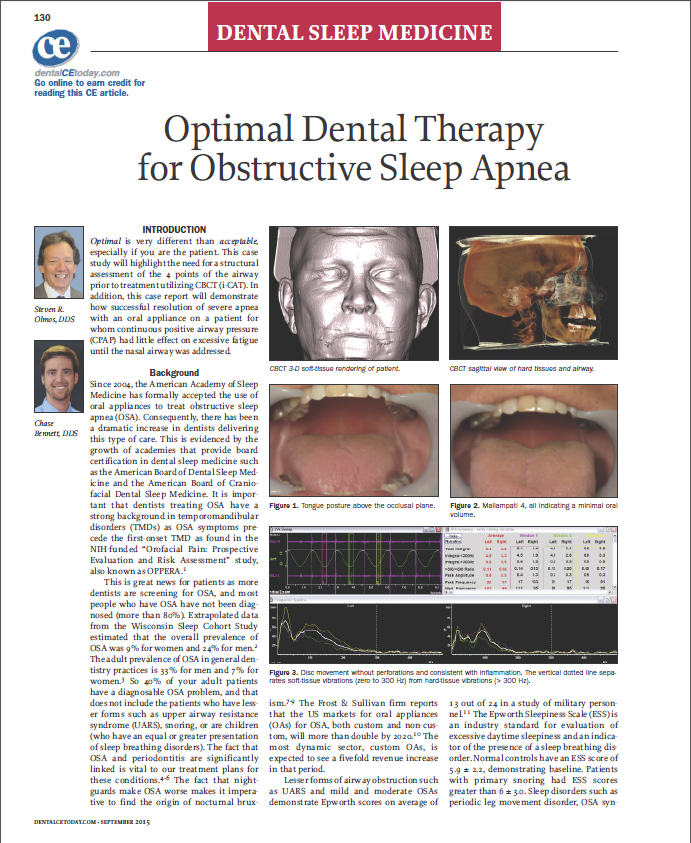 Optimal Dental Therapy for OSA