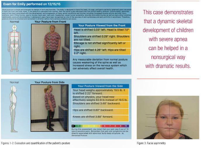 Pediatric severe apnea/obesity/TMD/headache – Class III